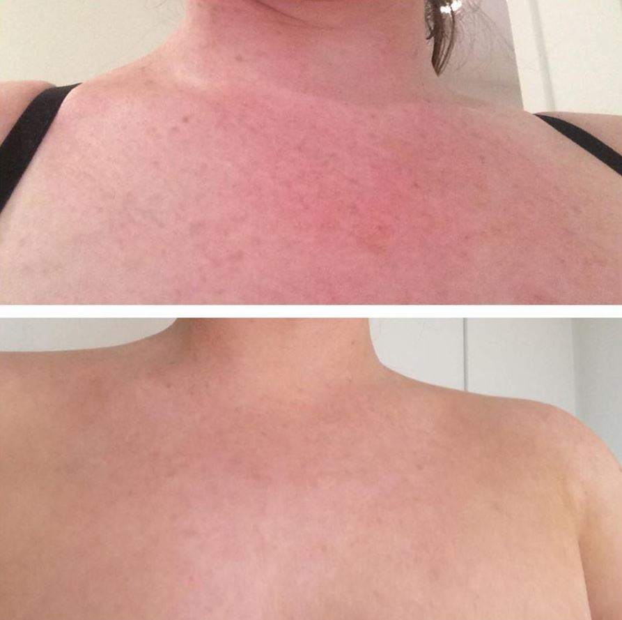 Decolletage treated with IPL
