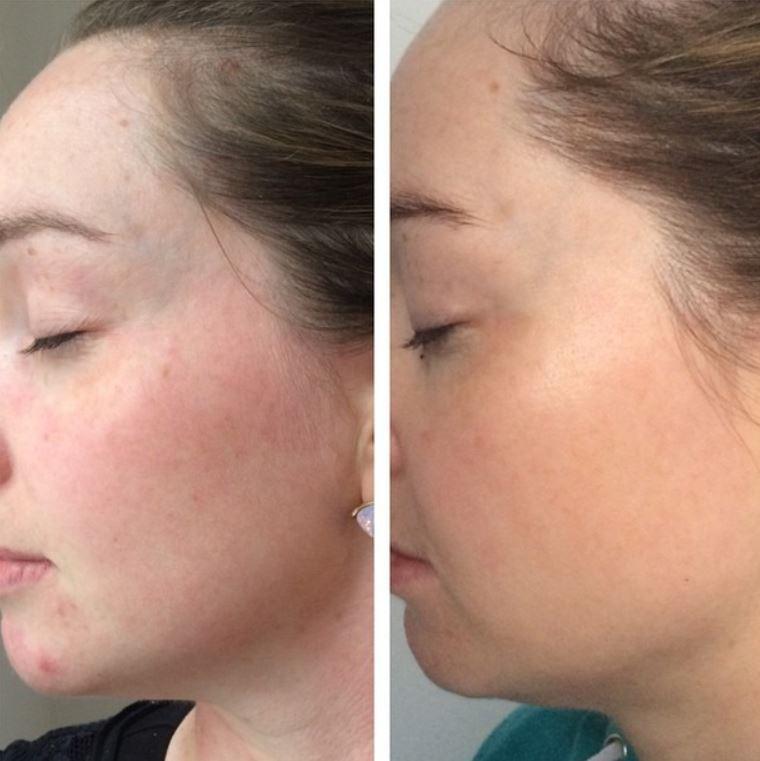 IPL Photo rejuvenation 14 days after 1 treatment