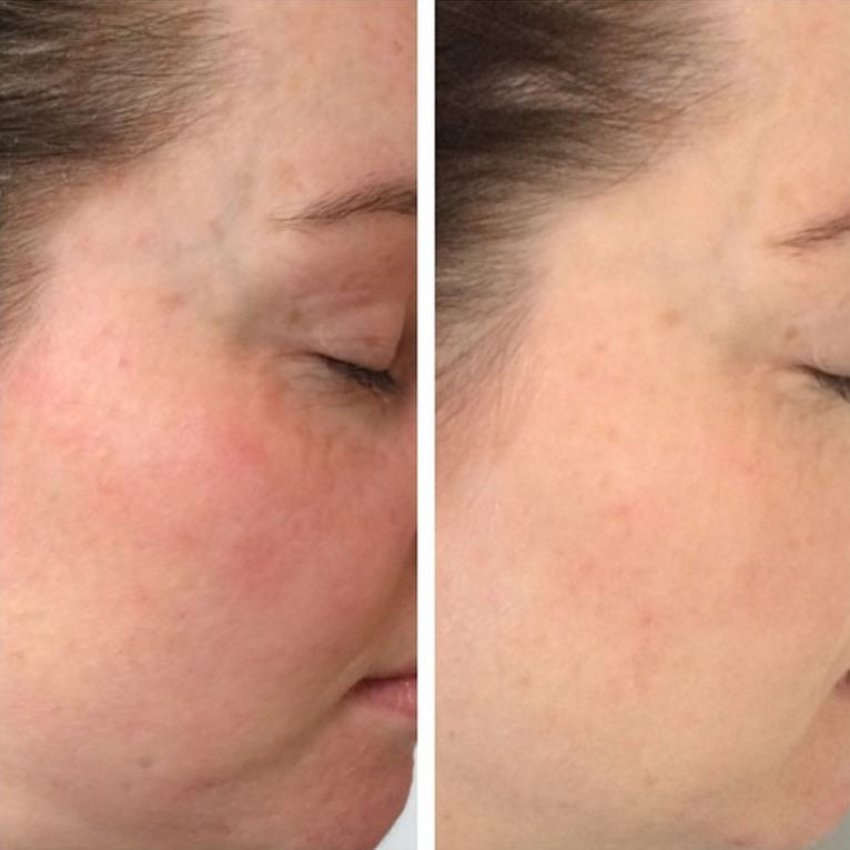 Photo rejuvenation for capillary damage